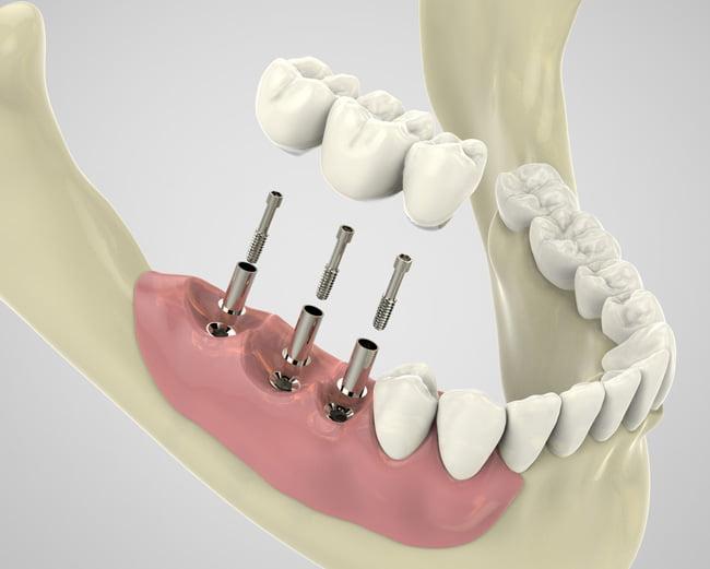 dental implants mingara dental