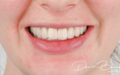 Veneers- are they right for you?