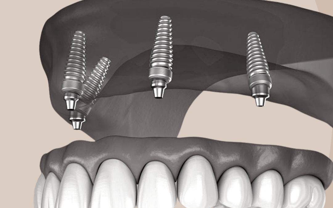 Teeth on Implants – Frequently Asked Questions with Dr David Bassal