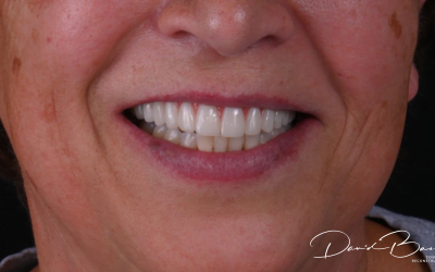 8 Questions to Ask Before Having Cosmetic Dentistry